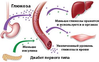 схема увеличения глюкозы в крови