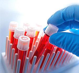 материал для биохимического анализа