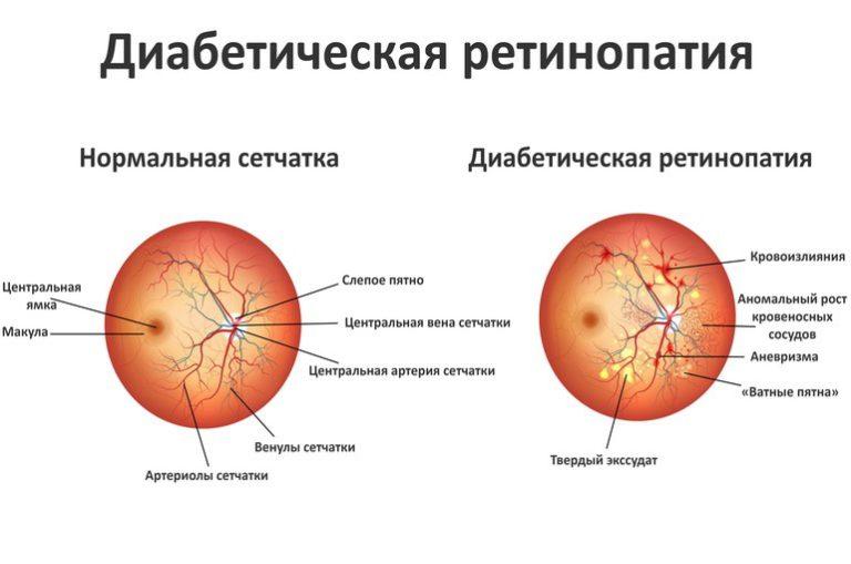 заболевание сетчатки глаза