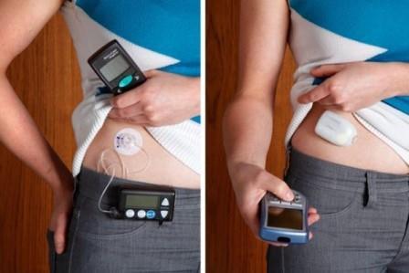 аппарат при инсулинзависимом диабете