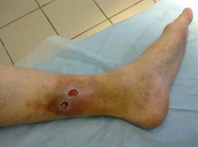 язвенное поражение ноги