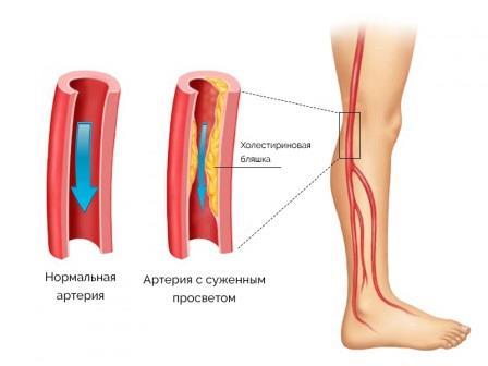 сужение сосудов на ногах