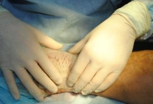 перевязка ран хирургом