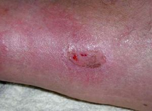 трофическая язва на коже