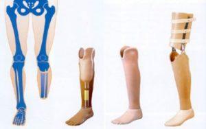 протез для нижней конечности