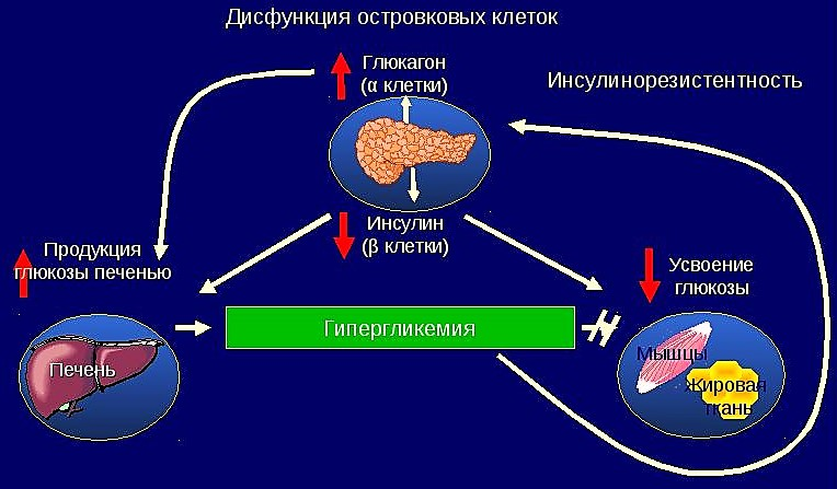 патофизиологические нарушения при диабете 2 типа