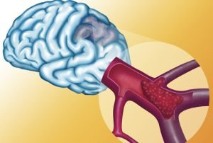 микроангиопатия сосудов мозга