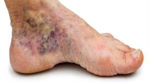 диабетическая нога